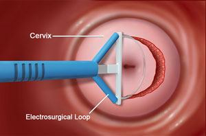LEEP Schaumburg, IL   Loop Electrosurgical Excision Procedure Mount  Prospect, IL